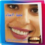 تجمیل_الاسنان_02