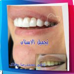 تجمیل_الاسنان_03