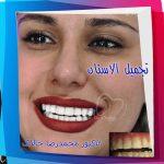 تجمیل_الاسنان_05