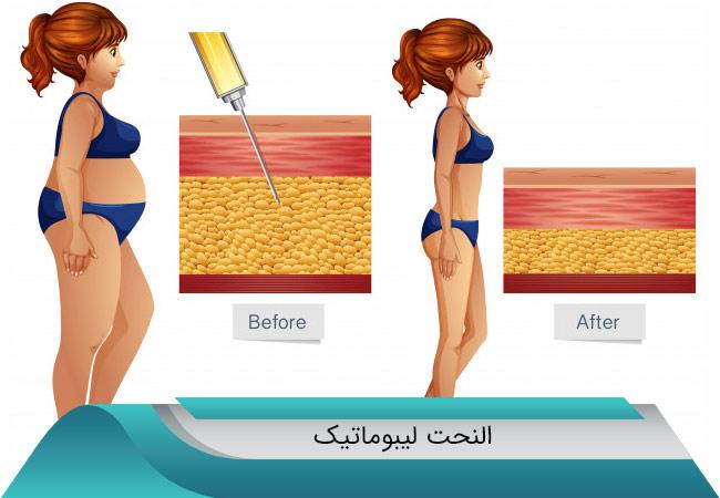 الانتفاخ-بعد-عملية-شد-البطن