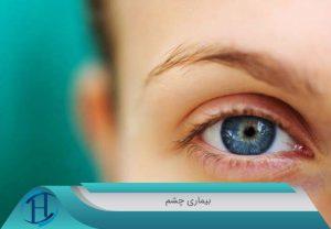 بیماری-های-چشم
