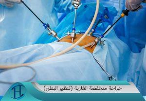 جراحة-منخفضة-الغازية-(تنظير-البطن)2