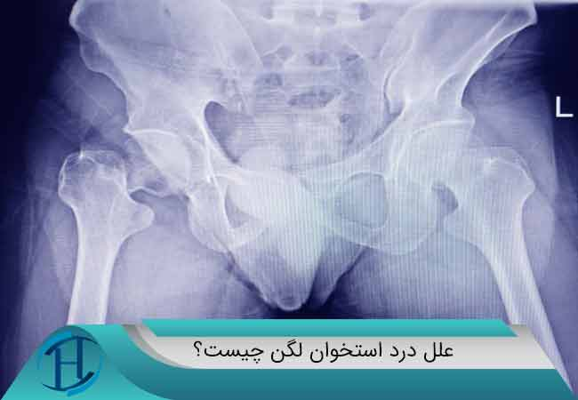 درد-استخوان-باسن