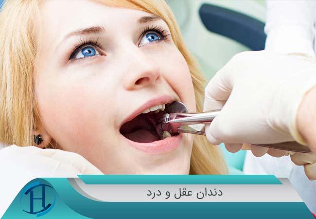 دندان عقل و درد