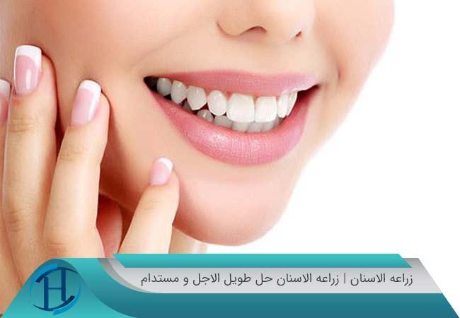 زراعه الاسنان | زراعه الاسنان حل طویل الاجل و مستدام