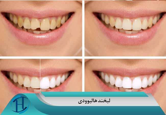 لبخند هالیوودی در مشهد