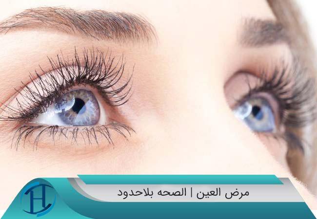 مرض-العين