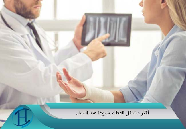 أكثر مشاكل العظام شيوعًا عند النساء