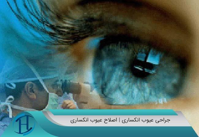 لنز داخل چشمی