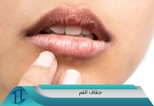 جفاف-الفم