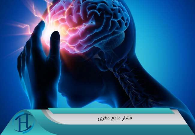 فشار مایع مغزی