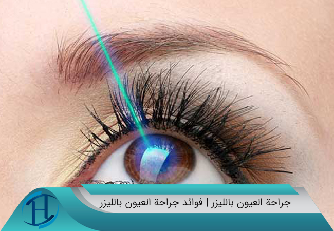 فوائد جراحة العيون بالليزر