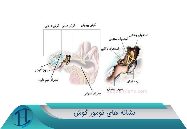 سرطان گوش