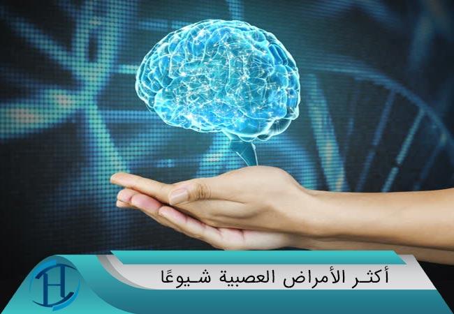 أكثر الأمراض العصبية شيوعًا