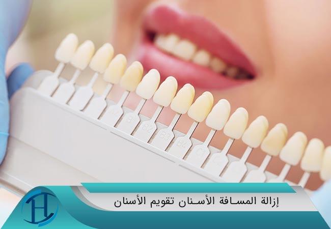 إزالة المسافة الأسنان تقويم الأسنان