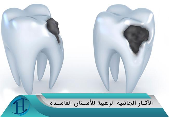 الآثار الجانبية الرهيبة للأسنان الفاسدة