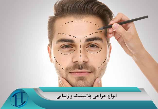 ایمپلنتهای چهره