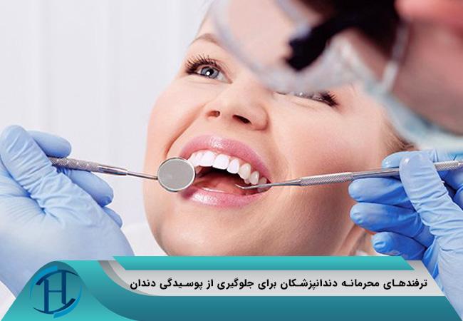 ترفندهای محرمانه دندانپزشکان برای جلوگیری از پوسیدگی دندان