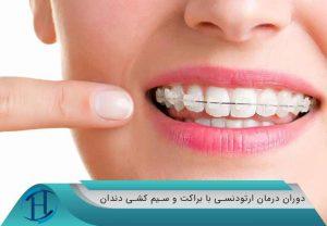دوران درمان ارتودنسی با براکت و سیم کشی دندان