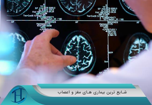 شایع ترین بیماری های مغز و اعصاب