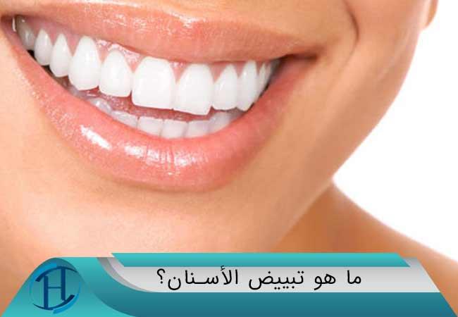 ما هو تبييض الأسنان؟