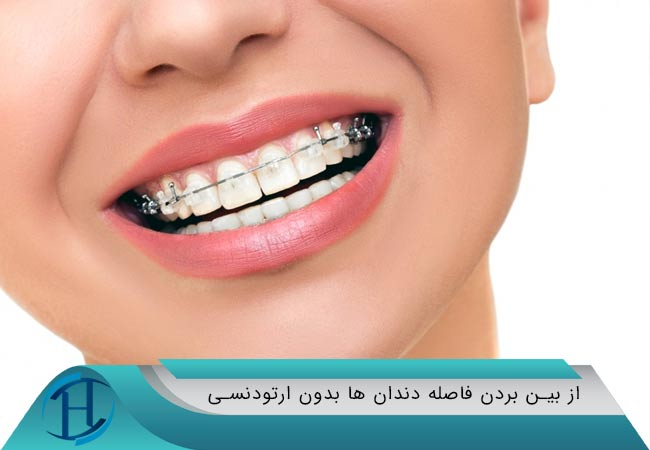 از بین بردن فاصله دندان ها بدون ارتودنسی
