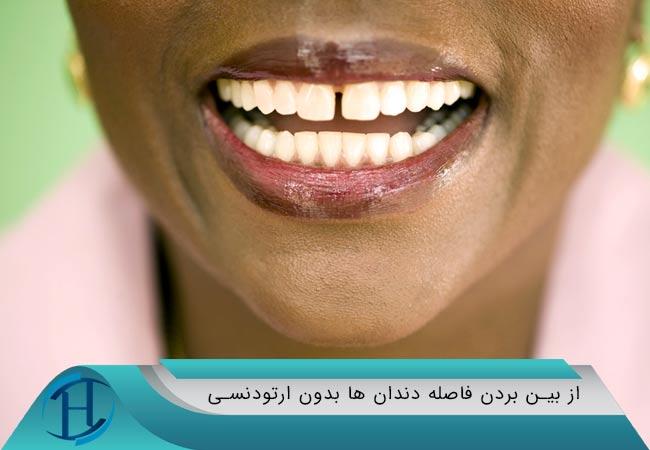 از بین بردن فاصله ی دندان ها بدون ارتودنسی