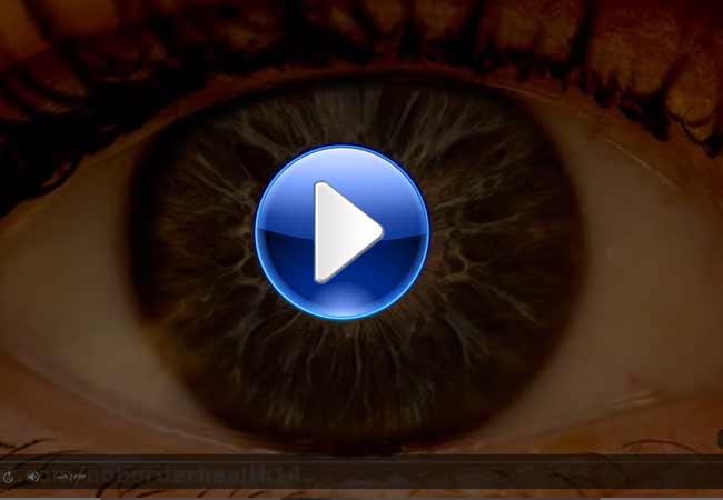 آزمون-گشادی-چشم