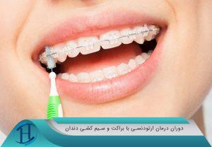 براکت و سیم کشی دندان