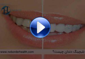 همه چیز درباره بلیچینگ دندان