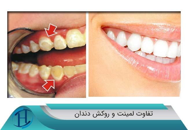 تفاوت-لمینت-و-روکش-دندان