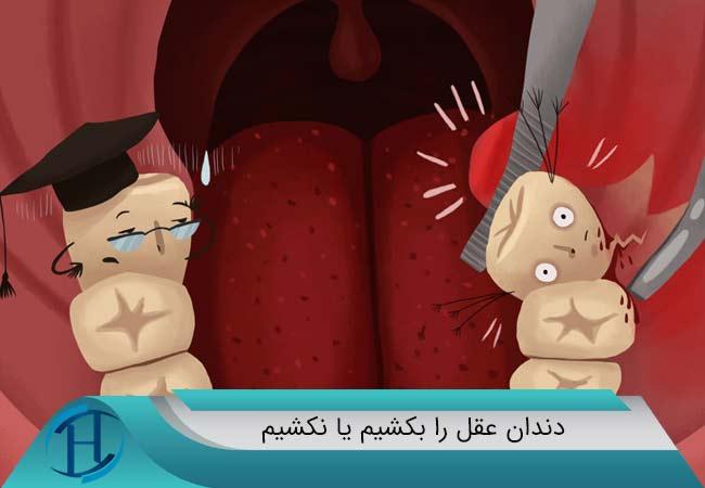 دندان عقل را بکشیم یا نکشیم