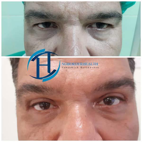 جراح زیبایی چشم