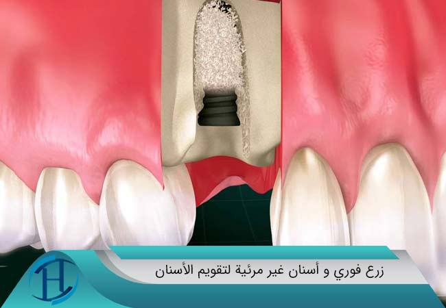زرع فوري و أسنان غير مرئية لتقويم الأسنان