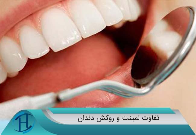 لمینت یا روکش دندان