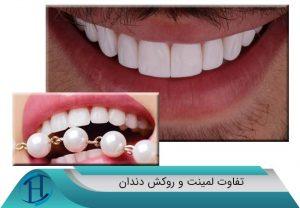 لمینت دندان یا روکش دندان