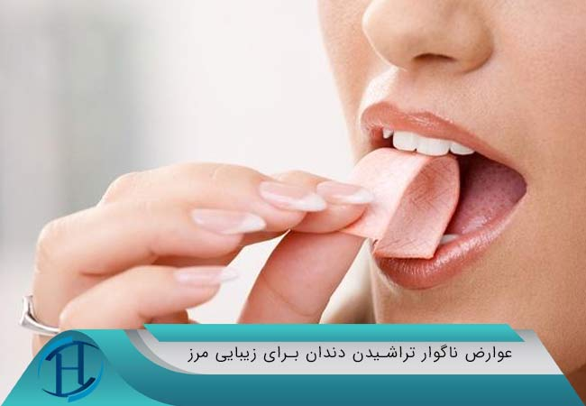 تراشیدن دندان برای زیبایی