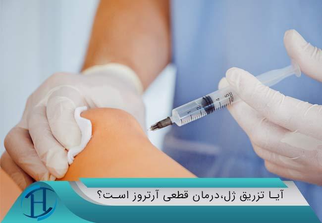 آیا تزریق ژل،درمان قطعی آرتروز است؟