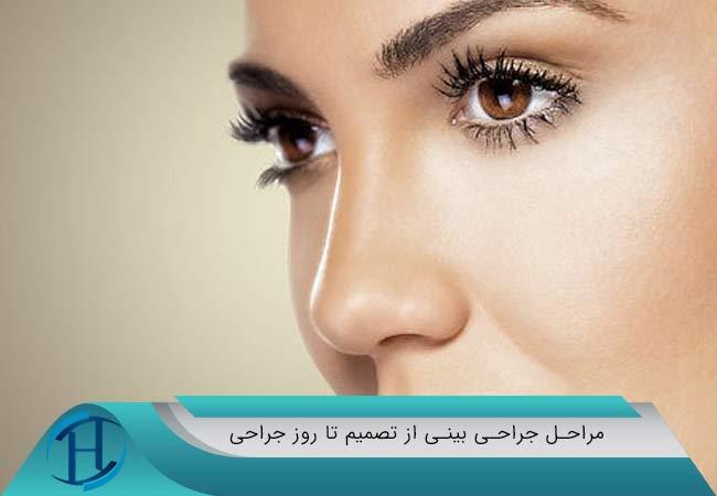 مراحل جراحی بینی