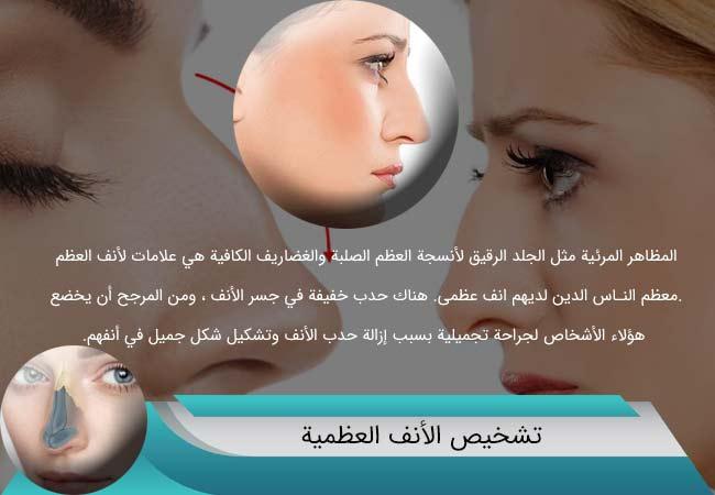 الأنف-العظمية-تشخیص