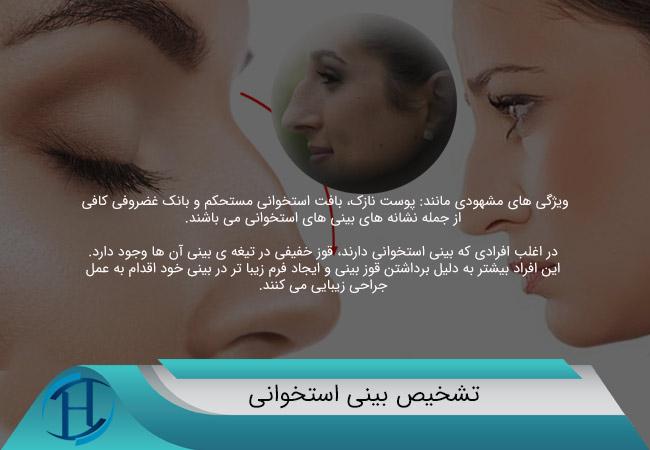 تشخیص-بینی-استخوانی