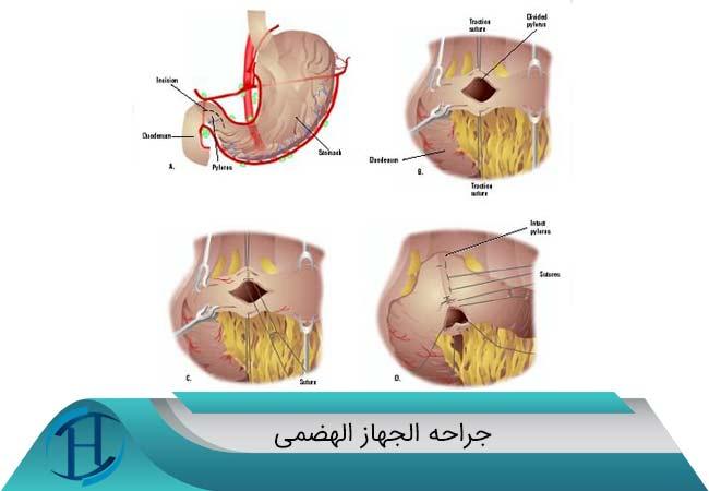 جراحه الجهاز الهضمی