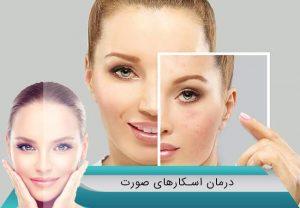 درمان قطعی اسکارهای صورت