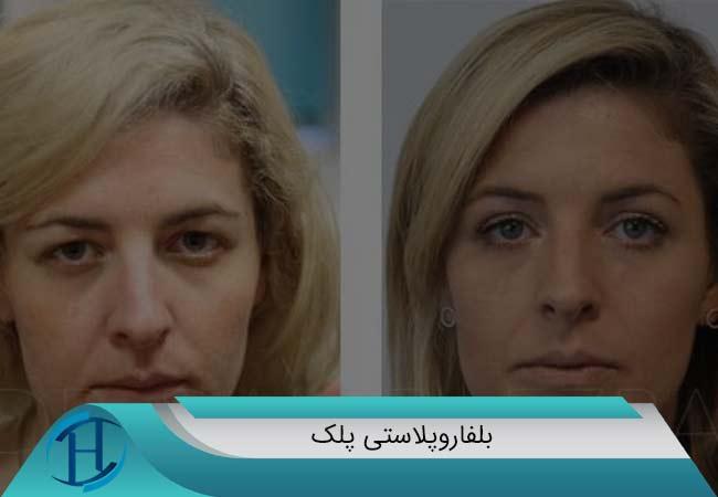 عمل زیبایی پلک در مشهد