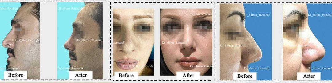 عمل بینی دکتر شیما کمندی