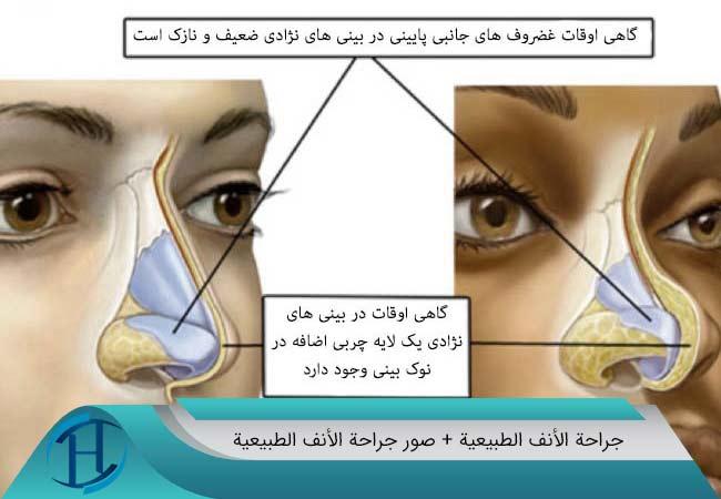 جراحة-الأنف-الطبيعية