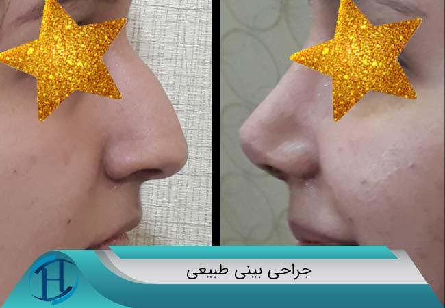 جراحی-بینی-طبیعی-دکتر-سلیمی-درمشهد