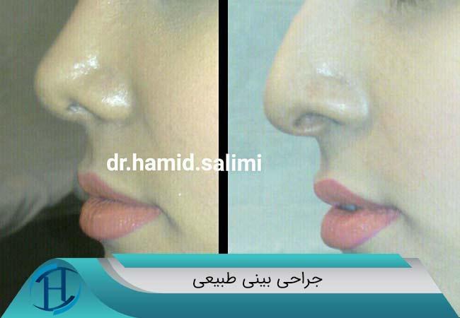 جراحی-بینی-طبیعی-دکتر-سلیمی-