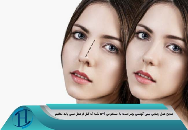 موفقیت-جراحی-بینی-گوشتی