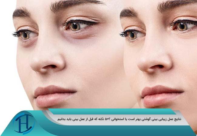 جراحی-بینی- گوشتی